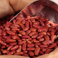 Light Red Kidney Beans 25 LB